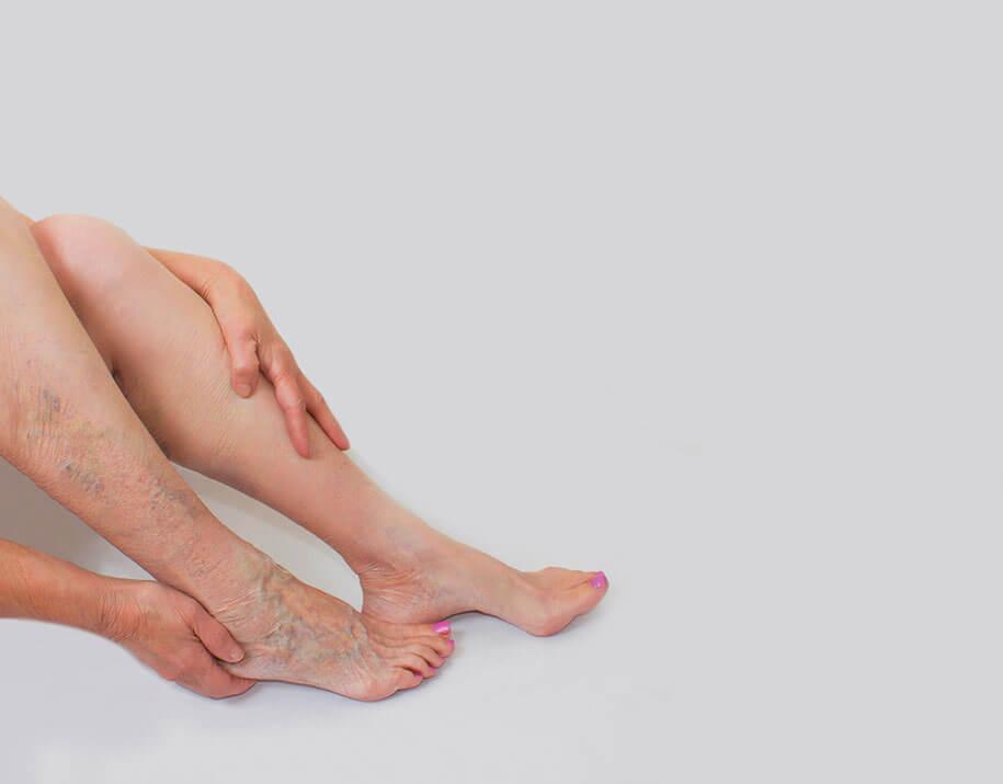 Suy tĩnh mạch chân có thể chữa trị dứt điểm nếu bạn biết cách