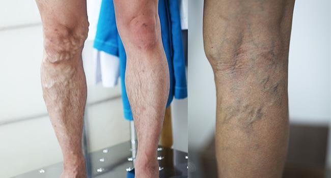 Biểu hiện nổi trội nhất của suy van tĩnh mạch là các đường gân xanh nổi trên da