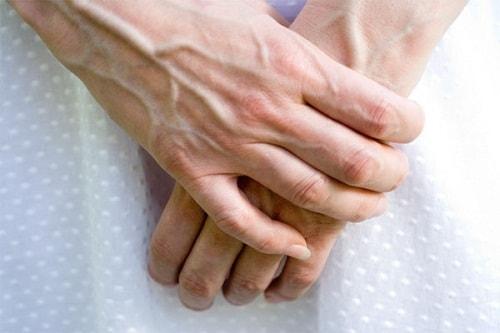 Gân xanh nổi trên tay là một trong những biểu hiện cụ thể nhất của bệnh