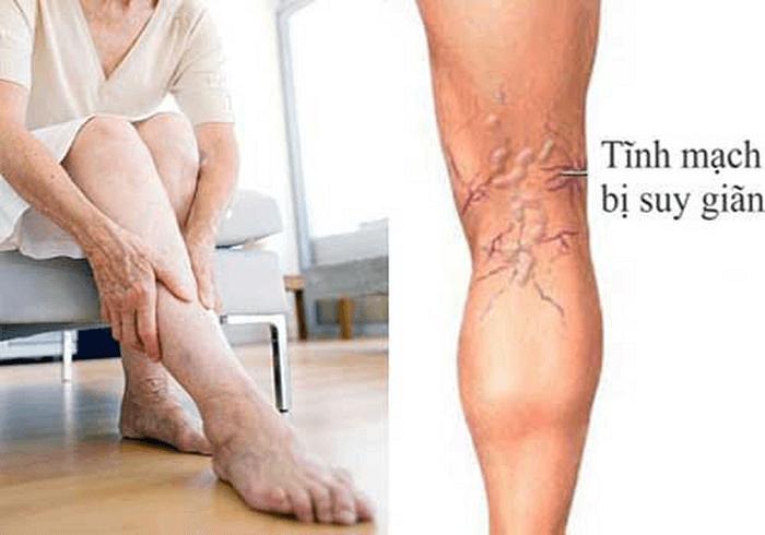 Suy giãn tĩnh mạch chân là gì và cách điều trị bệnh hiệu quả