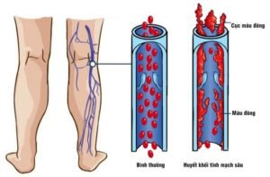 Bệnh giãn tĩnh mạch sâu nguyên nhân là gì và cách điều trị bệnh hiệu quả